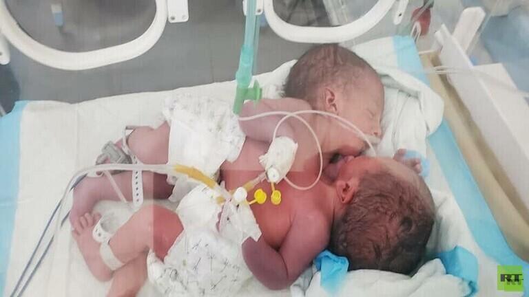 عملية ناجحة لفصل توأمين بورونديين في مستشفى مصري